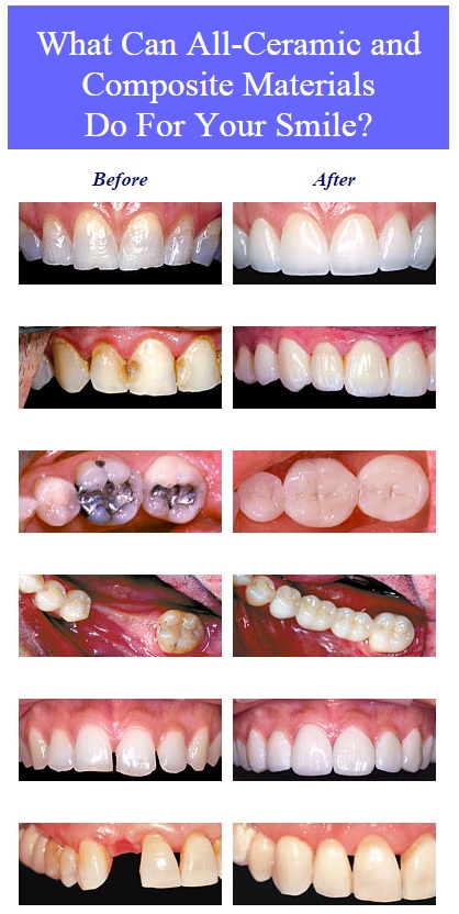 cosmetic-dentistry-before-after images