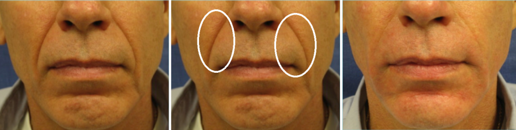 Before and after photo of Botox and Dermal Fillers case
